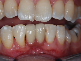A Resin Bonded Bridge used to restore missing teeth CB1