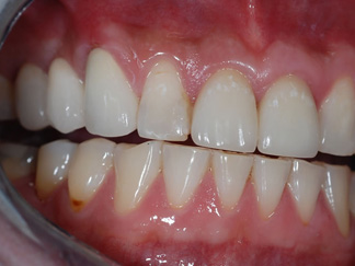 Conventional bridge will need the natural teeth to be trimmed (2) CB2