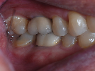 Dental Implant (1)DI 1