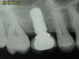 Dental Implant (2)DI 2