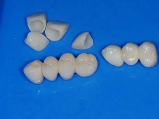 Full ceramic crowns and bridges (1) CB4
