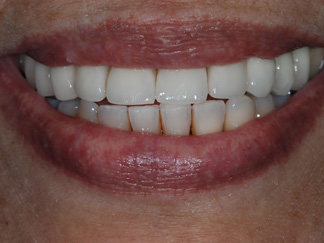 Full ceramic crowns and bridges (2) CB4