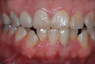 full ceramic crowns on upper front teeth C2