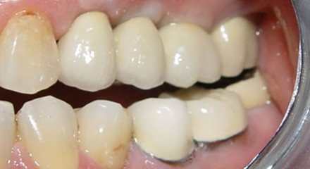 implants after cementation in mouth