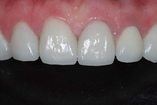 Full ceramic crowns and procelain veneers PV1