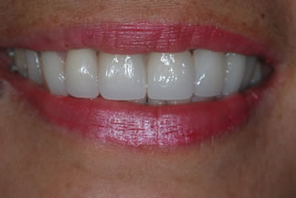 Smile restored with Porcelain veneers CD1