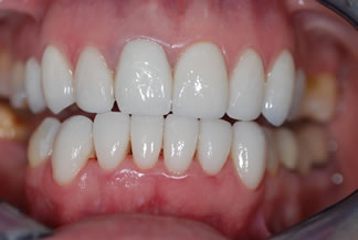 Smile restored with Porcelian Crowns and Veneers CD2